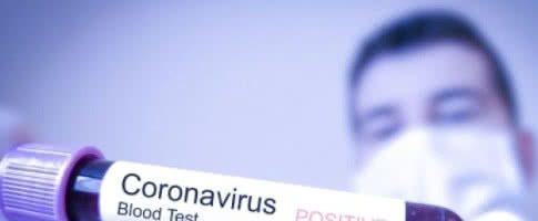 В Україні коронавірусом COVID-19 заразилися вже 480 людей, – МОЗ